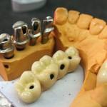 Работы на имплантах